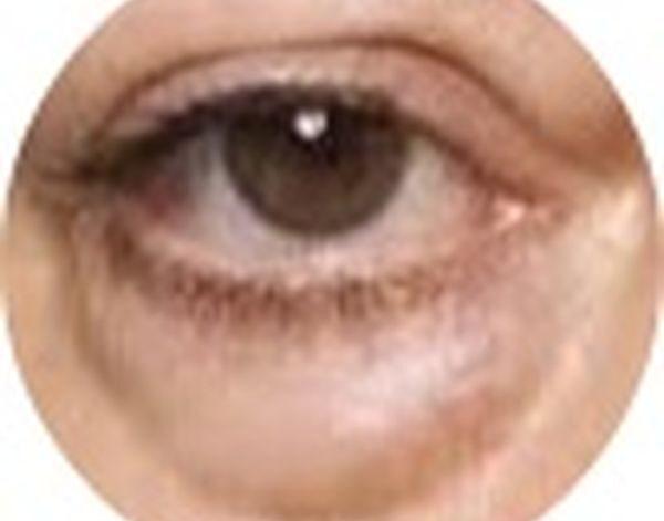 Fjernelse af poser under øjnene